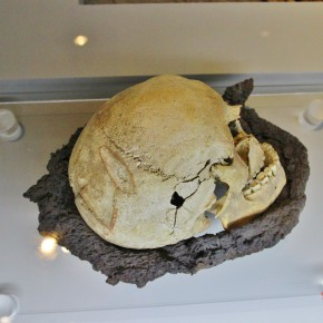 2011-06-20 Sweden Visby Gotland skulls 1361 battle skull hacked several times and patially healed